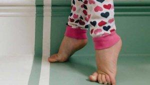 درمان کوتاهی آشیل در کودکان