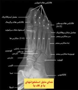 نماي مايل استخوان هاي پا و كف پا 👆