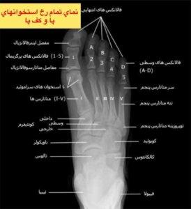 نماي تمام رخ استخوان هاي پا و كف پا 👆