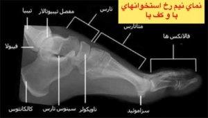 نماي نيم رخ استخوانهاي پا و كف پا👆