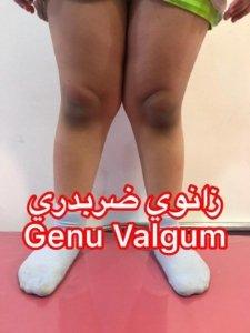 پاي ضربدري يا ايكس(Genu Valgum)